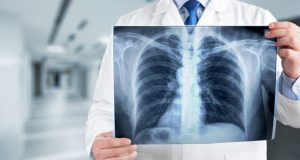 Lung cancer prediction